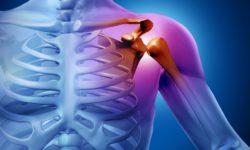 Что делать если болят суставы?